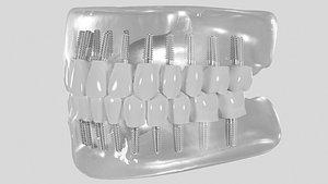 3D Dental implant model