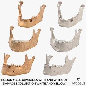 Human Male Jawbones With And Without Damages Collection White and Yellow - 6 models 3D model