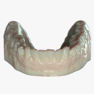 3D denture mold model