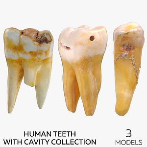Human Teeth with Cavity Collection - 3 models 3D model