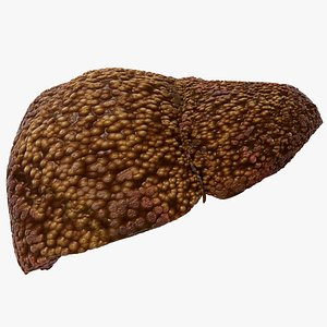 liver cirrhosis disease 3D