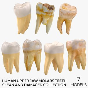 3D Human Upper Jaw Molars Teeth Clean and Damaged Collection - 7 models