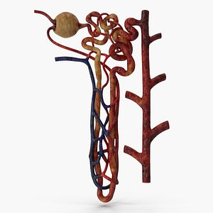 Kidney Nephron Unhealthy  Damaged structure 3D model