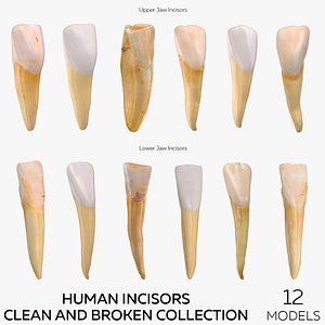 Human Incisors Clean and Broken Collection - 12 3D model
