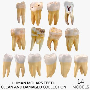 Human Molars Teeth Clean and Damaged Collection - 14 models 3D model