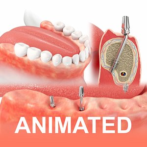 Jaws with Dental Implants Animation model