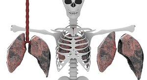 smoker lungs model