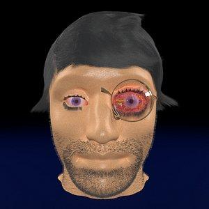 3D thyroid eye disease