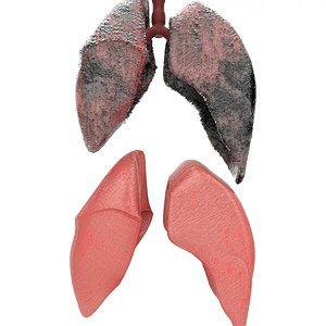 3D healthy smoker lungs model
