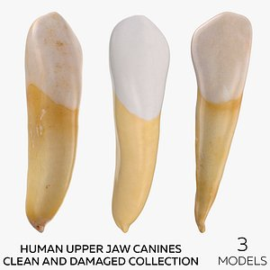 3D Human Upper Jaw Canines Clean and Damaged Collection - 3 models model