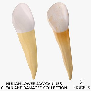 Human Lower Jaw Canines  Clean and Damaged Collection - 2 models 3D model