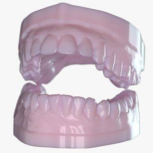 3D Dentures C Mold