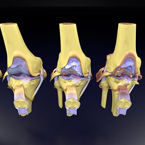 osteoarthritis stages 3D
