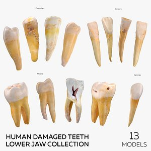 Human Damaged Teeth Lower Jaw Collection - 13 models 3D model