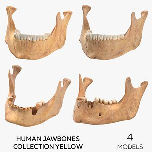3D model Human Jawbones Collection Yellow - 4 models