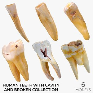 Human Teeth with Cavity and Broken Collection - 6  models 3D