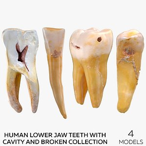 Human Lower Jaw Teeth with Cavity and Broken Collection - 4  models 3D model