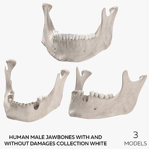 Human Male Jawbones With And Without Damages Collection White - 3 models 3D model