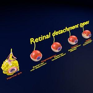 Retinal detachment types eye 3D model