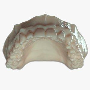 denture mold 3D