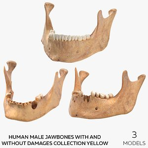 3D Human Male Jawbones With And Without Damages Collection Yellow - 3 models model