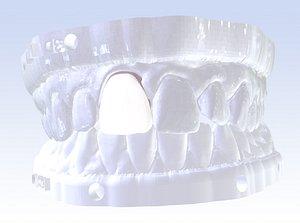 3D model digital incisor veneer