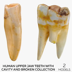 3D Human Upper Jaw Teeth with Cavity and Broken Collection - 2 models model