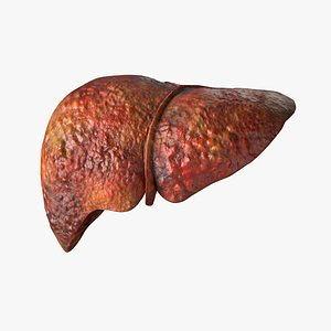 Human Liver Damaged 3D