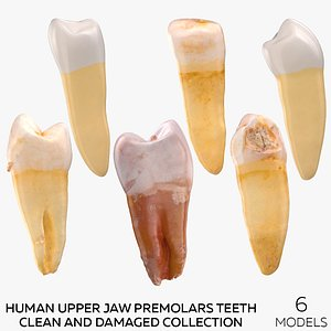 3D model Human Upper Jaw Premolars Teeth Clean and Damaged Collection - 6 models