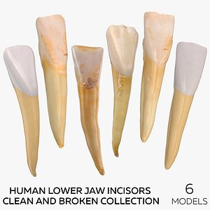 3D model Human Lower Jaw Incisors Clean and Broken Collection - 6 models