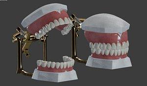 3D dental prosthesis articulator