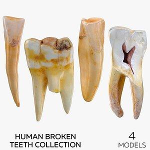 3D Human Broken Teeth Collection - 4 models