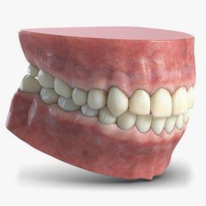 3D gum human teeth