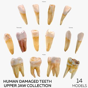 3D Human Damaged Teeth Upper Jaw Collection - 14 models model