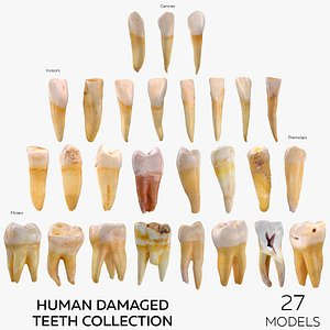 3D Human Damaged Teeth Collection  - 27 models
