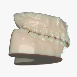 3D denture mold