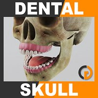 Human Dental Skull - Anatomy